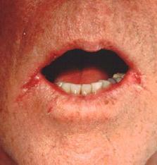 Трещины и заеды в уголках рта,Post navigation