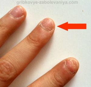 Грибок ногтей при лактации фото