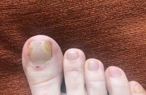 При появлении симптомов грибка ногтя нужно обратиться к дерматологу