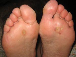 Бородавки на ступнях ног стоит удалять