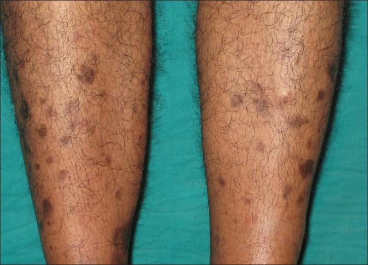 Пятна на ногах при диабете говорят о том, что болезнь прогерссирует