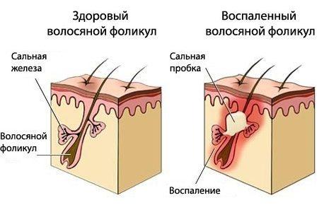 Себорея кожи лечение
