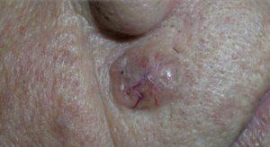 Базалиома - доброкачественная опухоль на лице