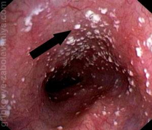 Кандидоз кишечника фото