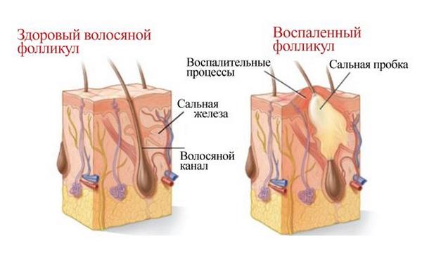 рубцовая алопеция у женщин