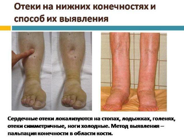 Проявление отёчности ног