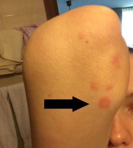 Аллергический дерматит на локте