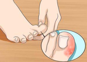 Вросший ноготь на большом пальце доставляет боль при ходьбе