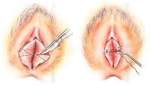Уплотнение на половых губах все причины и лечение,Post navigation