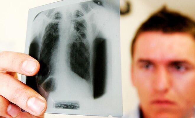 Пути передачи туберкулеза легких