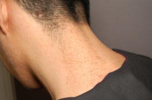 Пигментные пятна на шее - распространенная патология