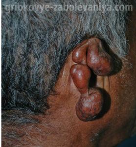 Лобомикоз поразил ухо женщины