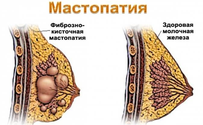 мастопатия диффузно кистозная
