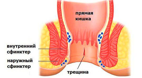В результате трещины человек чувствует сильную боль