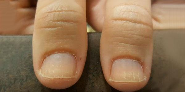 Почему появляются заусенцы на пальцах,Post navigation