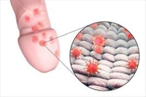 Пупырышки могут появиться из-за внешних и внутренних факторов