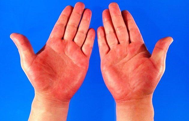 Зуд кистей рук
