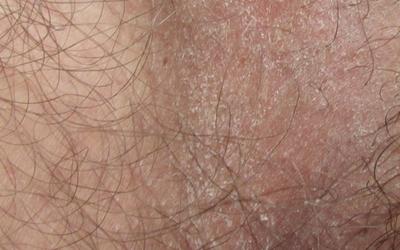 Шелушение на половых губах в чем причина и чем лечить,Post navigation