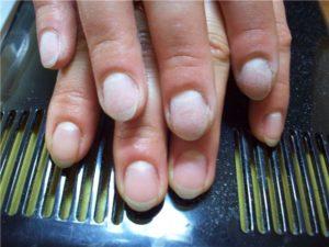 Почему загибаются ногти на руках?,Post navigation