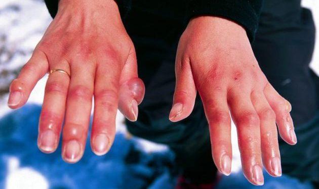 Аллергия рук на мороз