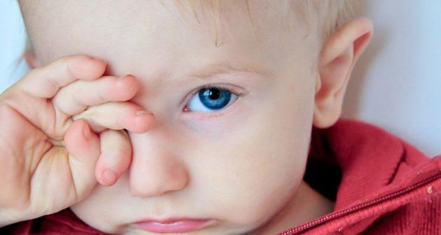 Что нужно знать о воспалении глаз у ребенка