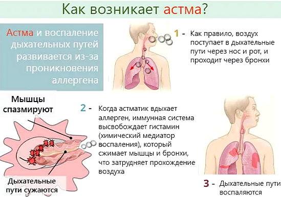 Механизм возникновения астмы