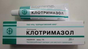 Лечение запущенной молочницы,Post navigation