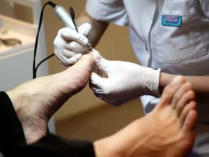 Педикюр при грибке ногтей,Post navigation