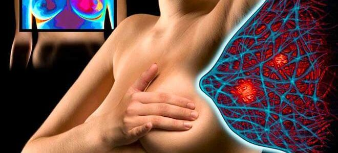 мастопатия диффузно фиброзная