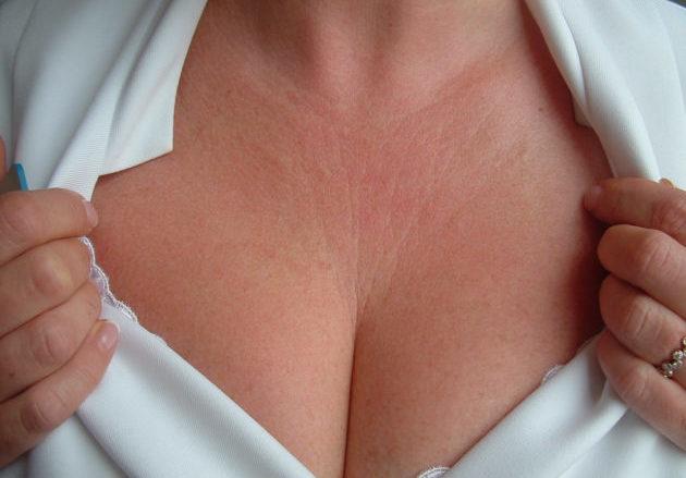 Что означают изменения пигментации кожи на грудине и как с ними бороться?