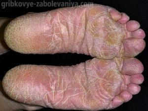 Межпальцевая эпидермофития стоп - запущенное состояние