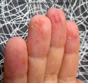 Трескается кожа на пальцах - грибок