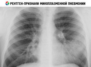 Микоплазменная пневмония: диагностика