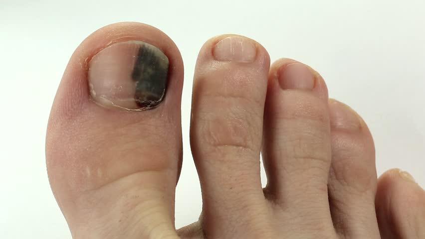 Часто синяк появляется в результате травмы