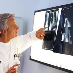 Причины появления костной мозоли после перелома