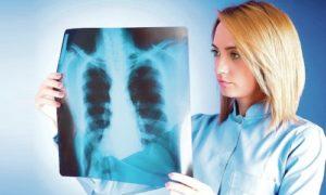 Заразен ли инфильтративный туберкулез легких и как лечится