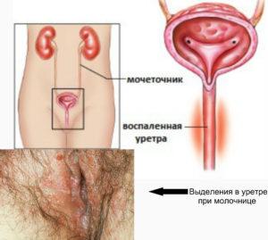 Молочница в уретре у женщин
