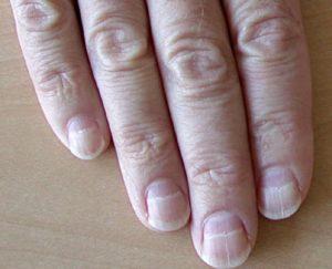 Белые пятна на ногтях рук что это означает?,Post navigation