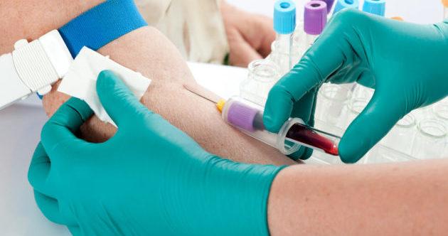 Забор крови для постановки аллергопроб