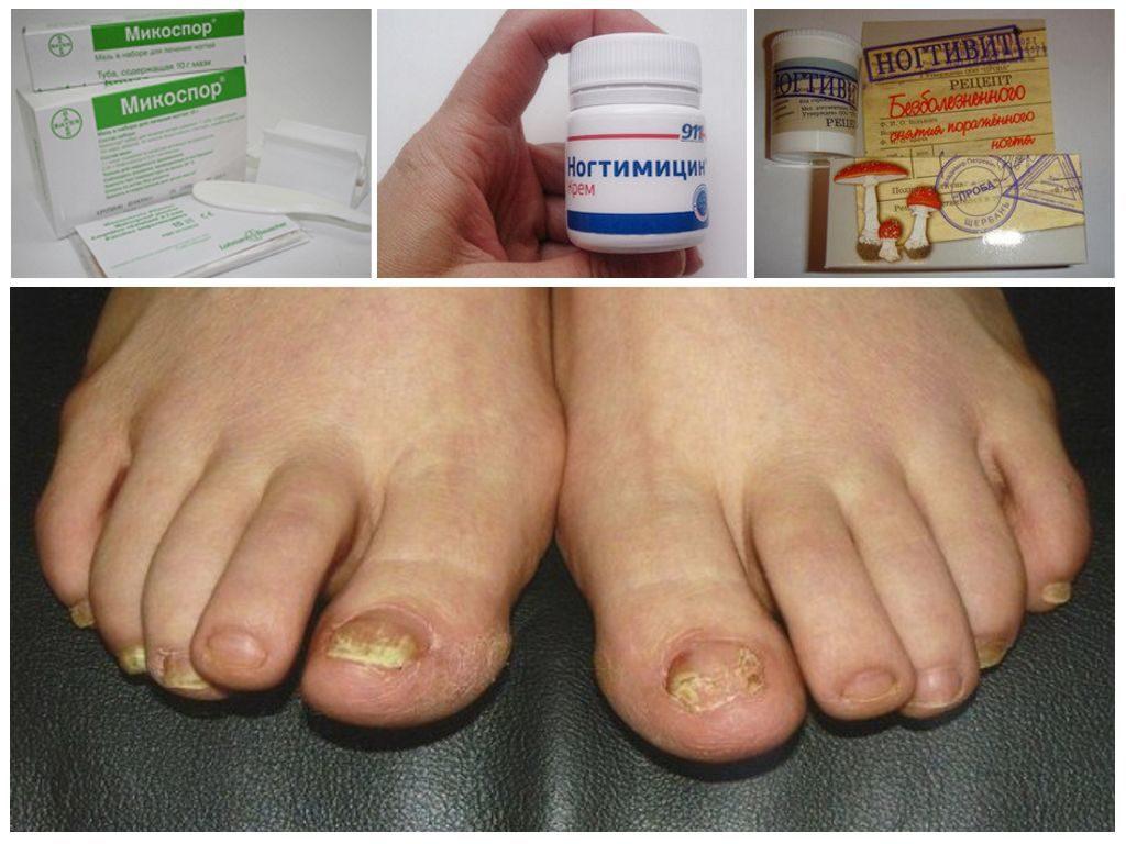 Как можно снять ноготь, пораженный грибком, в домашних условиях?,Post navigation
