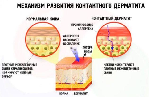 Контактный дерматит механизм