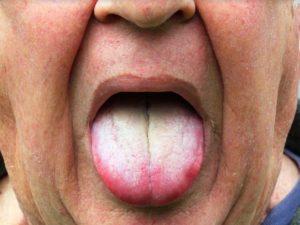 Белый налет на языке - симптом болезней пищеварительной системы