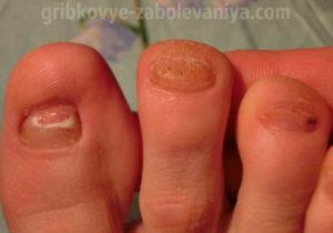 Онихомикоз на пальцах ног