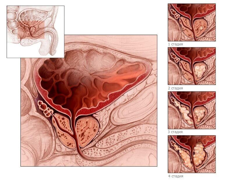 Стадии развития гиперплазии