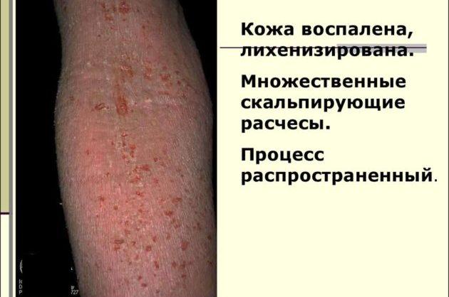 Распространённый дерматит