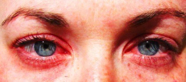 Аллергические реакции зуд глаз