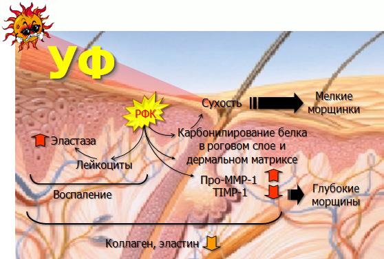 Ультрафиолетовое излучение кожи