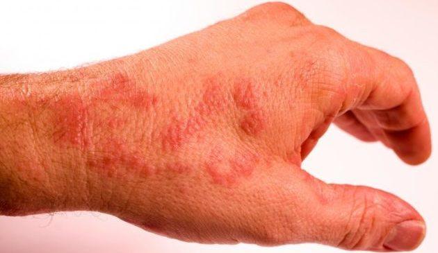 Сыпь на руках – причина паниковать?