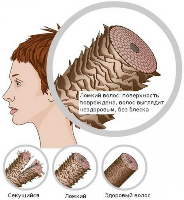 Схема секущегося, ломкого и здорового волоса