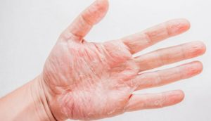 На кожу влияют внешние факторы - холод, ветер